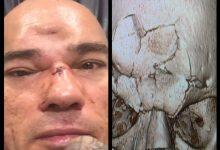 Evangelista Santos ondergaat operatie van 7 uur